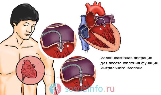 стеноз митрального клапана сердца
