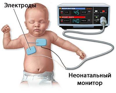 Дети с миокардитом остаются в больнице для стабилизации состояния