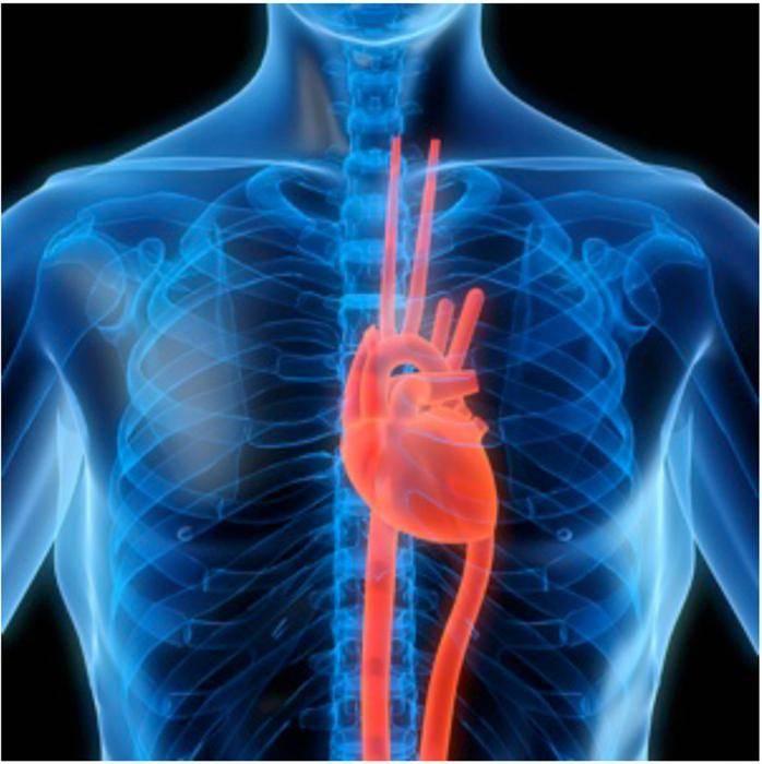 шунтирование сосудов сердца осложнения