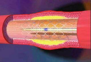 стентирование или шунтирование сосудов сердца