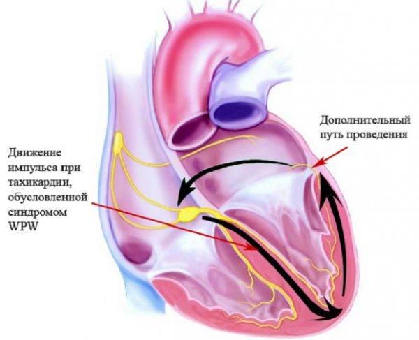 Механизм развития тахикардии