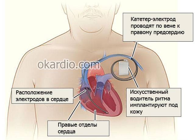 инфаркт задней стенки инвалидность