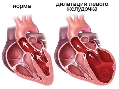 дилатация левого желудочка сердца