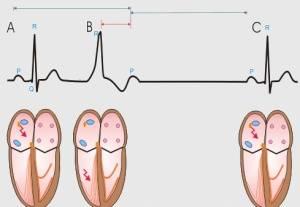 Лечение желудочковой экстрасистолии