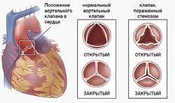 Правильное и неправильное функционирование сердечных клапанов