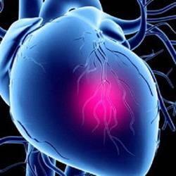 Врождённый порок сердца