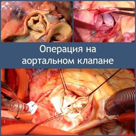 Операция на аортальном клапане