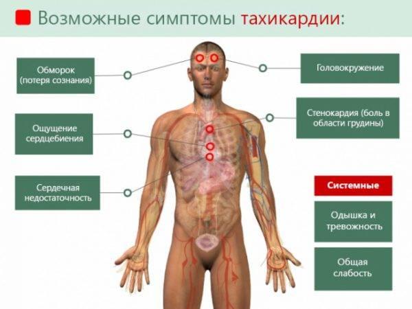 Основные симптомы тахикардии