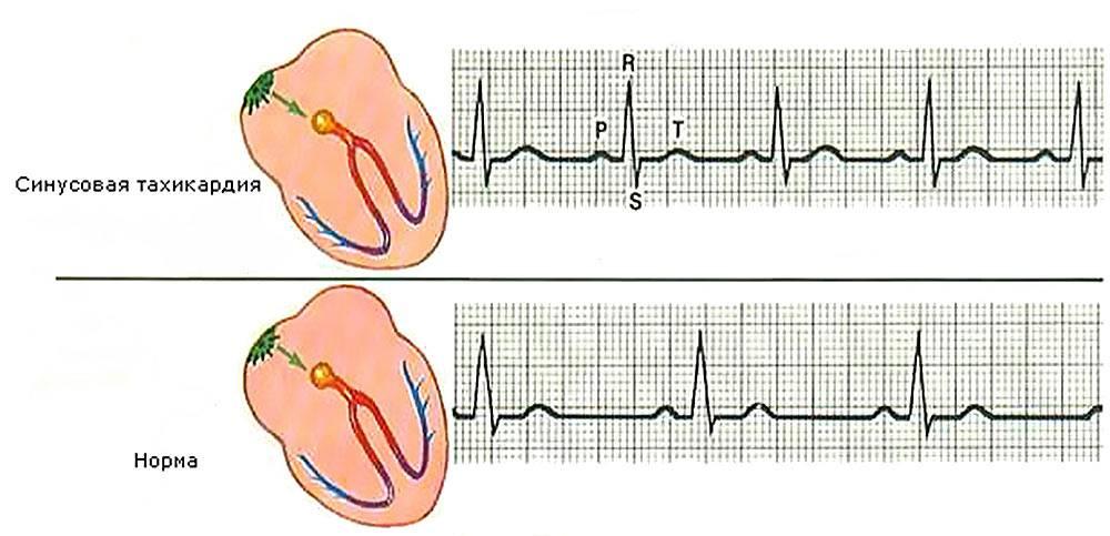Сравнение нормального ритма с синусовой тахикардией