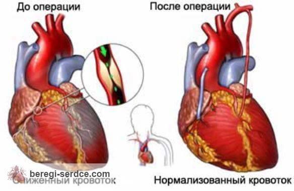 Коронарное шунтирование сосудов сердца