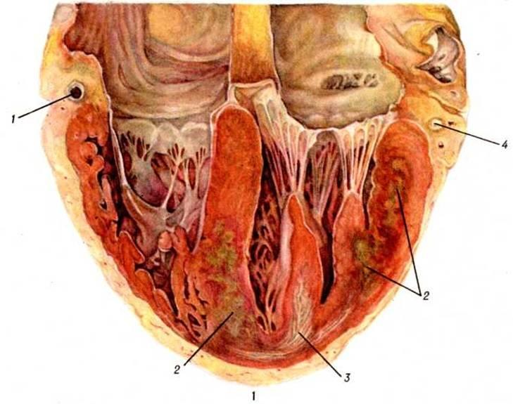 Лечение инфаркта миокарда, эффективные методы лечения