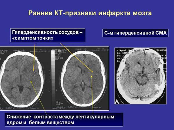 Ранние КТ-признаки инфаркта миокарда