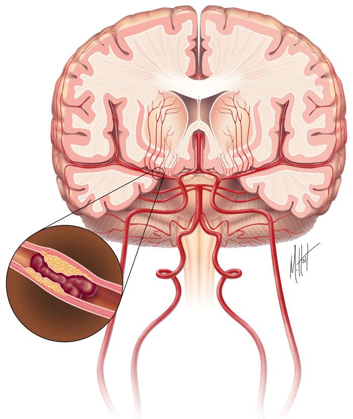 Нарушение мозга при инфаркте миокарда
