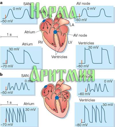 Приступ аритмии