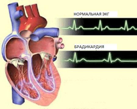 замедленное_сердцебиение