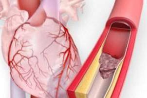 сердечный приступ симптомы у женщин