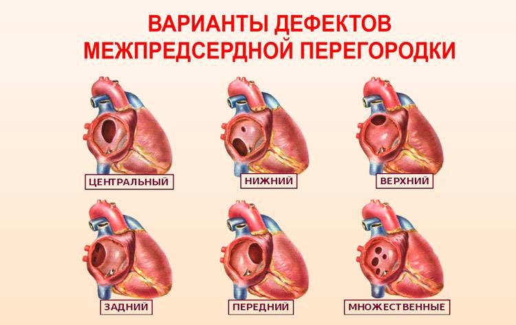 Дефект межпредсердной перегородки вторичный врожденный порок сердца у новорожденных детей и взрослых