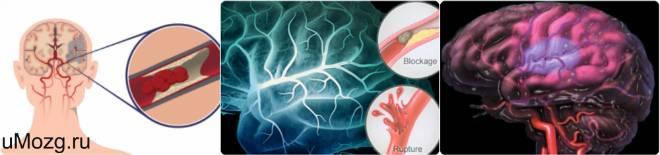 лечить инфаркт мозга