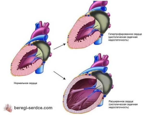 Виды острой сердечной недостаточности