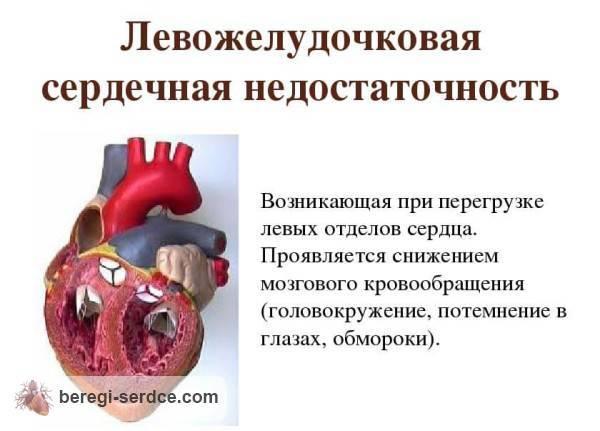 смерть от острой сердечной недостаточности симптомы