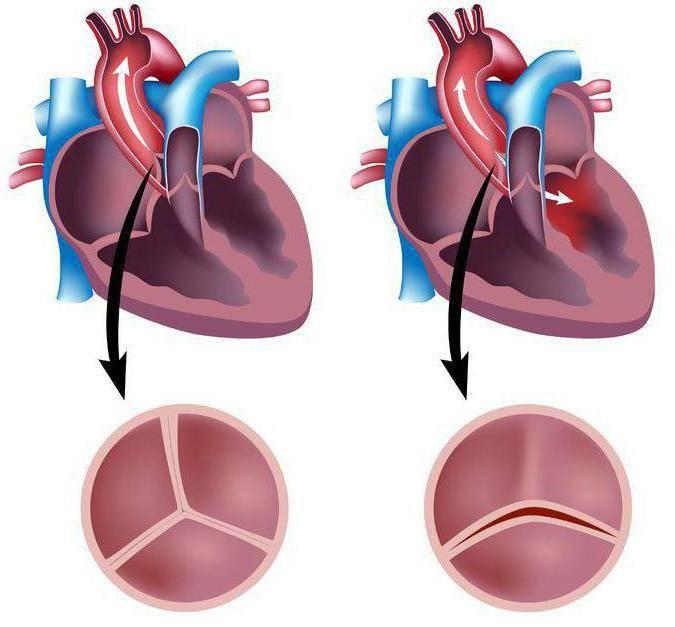 аортальный двустворчатый клапан