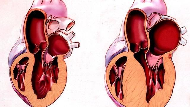 Перегрузка левого желудочка — Сердце