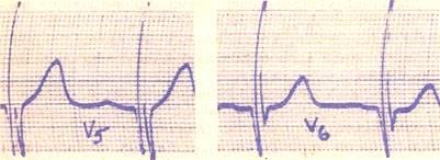 Графика электрокардиограммы