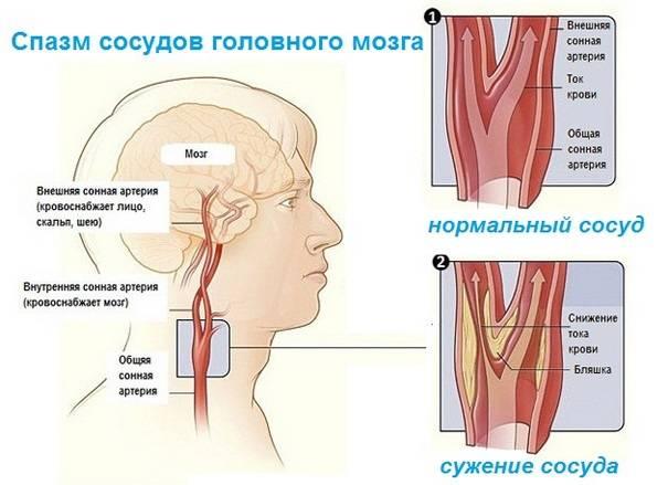 Лекарство от головокружения и спазмов сосудов