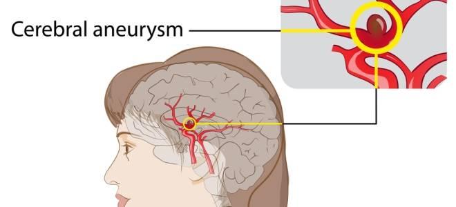 признаки аневризмы сосудов головного мозга