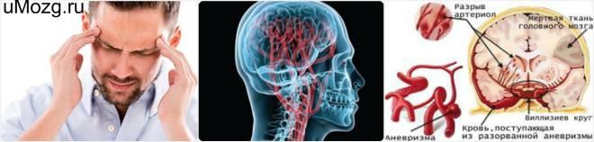 Аневризма мозга