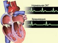 Как вылечить брадикардию сердца