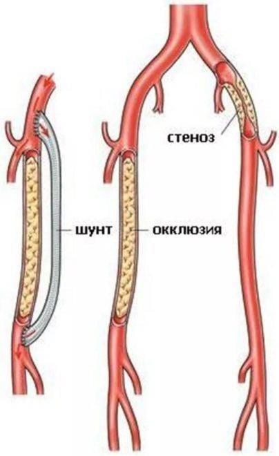 Как образовывается окклюзия вен