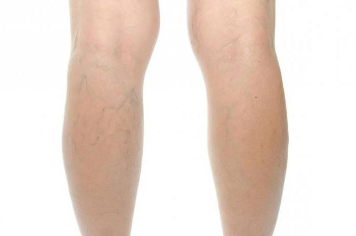 закупорка вен на ногах лечение