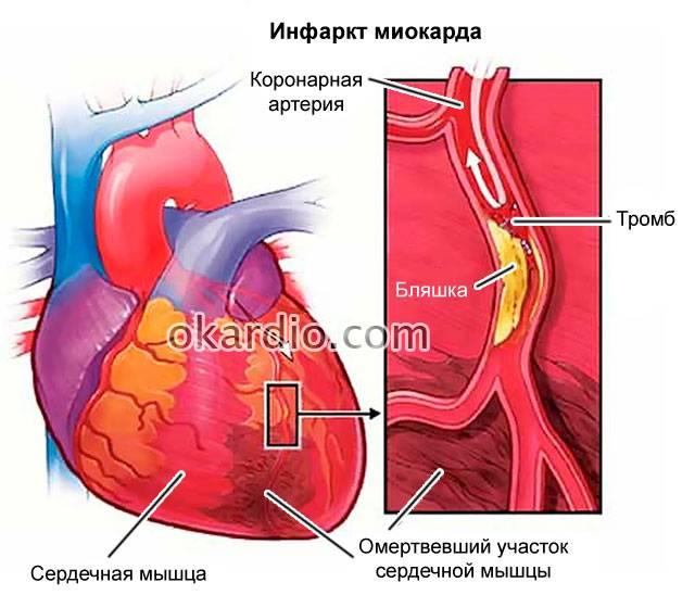 сколько лет живут после инфаркта миокарда статистика