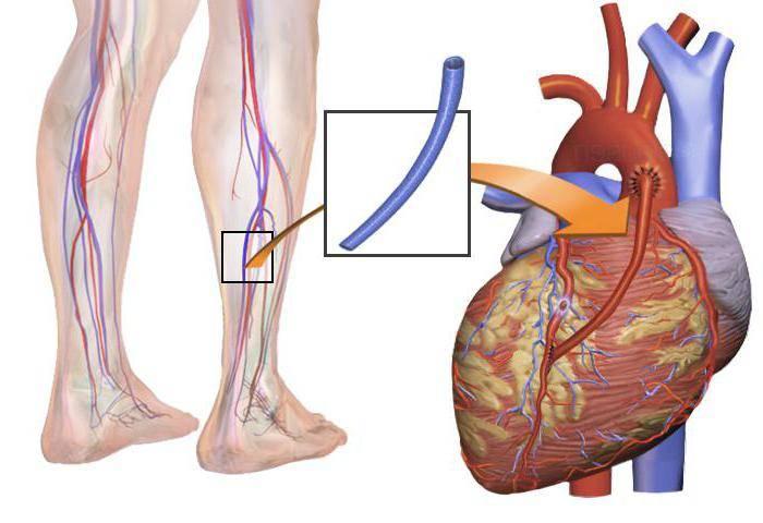 восстановление после шунтирования сердца