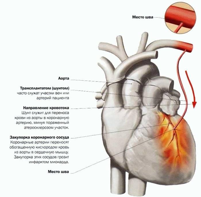 После шунтирования сердца — Сердце