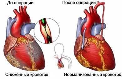 Сколько проживешь после шунтирования на сердце