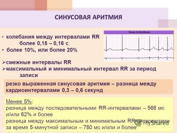 Аритмия на кардиограмме с пояснениями