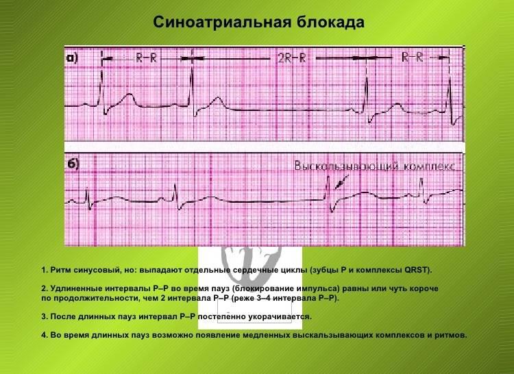 Синусовая блокада на кардиограмме с пояснениями