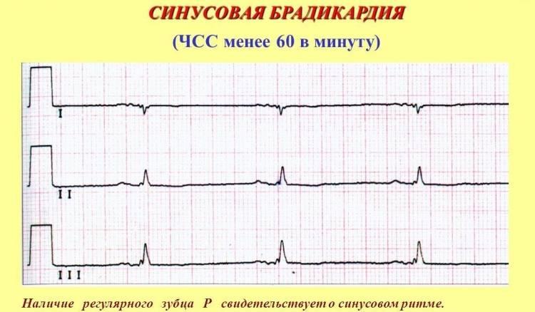 Брадикардия на кардиограмме с пояснением