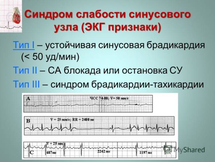 Слабость узла на кардиограмме с пояснениями
