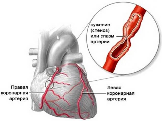 Стенокардия сердца