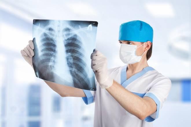 Рентгенография сердца