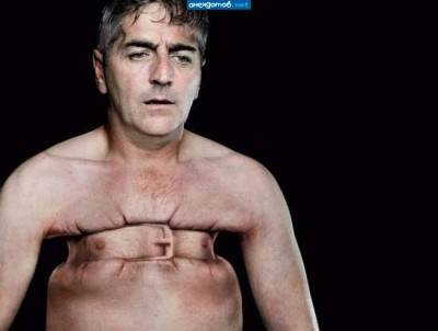 При стенокардическом приступе ощущеается чувство сдавленности груди и тяжело дышать