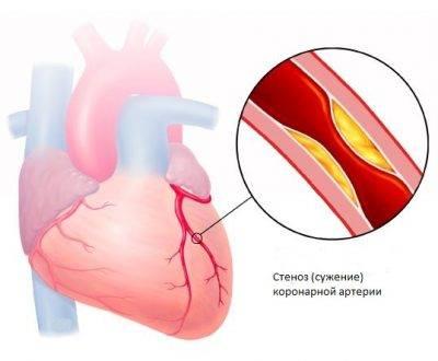 Пример стеноза коронарной артерии