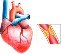 Причины боли за грудиной с левой стороны и в левой лопатке. Методы профилактики и лечения