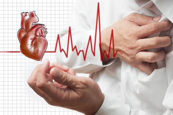 передне боковой трансмуральный инфаркт