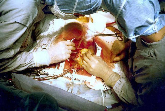 осложнения при шунтировании сосудов сердца