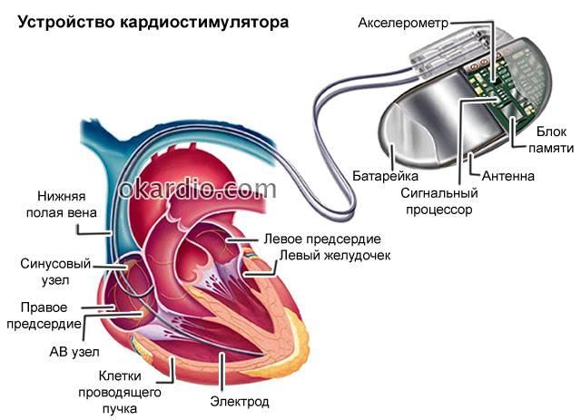 устройство кардиостимулятора