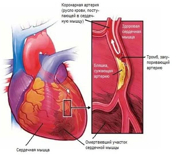 воспаление клапана сердца лечение народными средствами